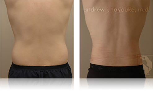 Liposuction in Palm Springs