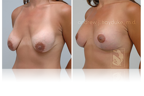 Breast Lift Palm Springs