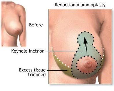 breast reduction mammoplasty
