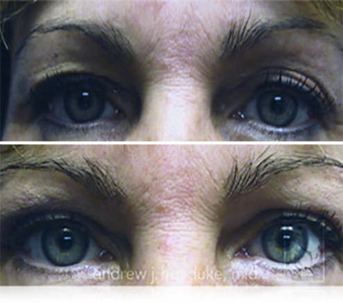Eyelid Surgery Palm Desert
