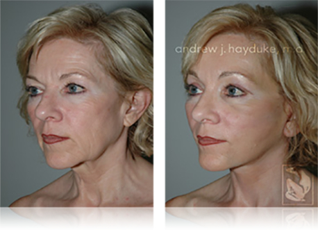Facelift Rancho Mirage