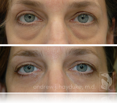 Palm Springs Blepharoplasty