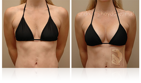Breast Implants Palm Springs