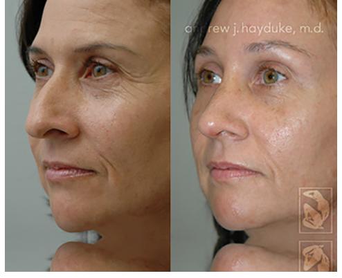 Palm Desert Nose Surgery