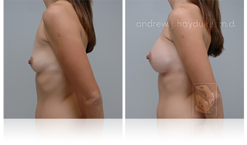 Breast Implants Rancho Mirage