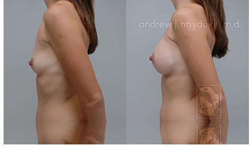 Breast Implants Rancho Mirage