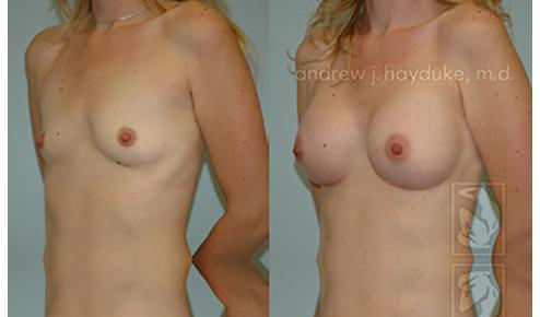 Breast Implants Palm Desert